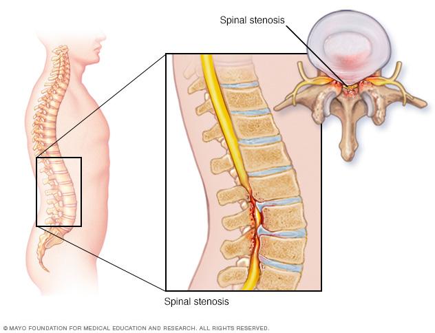 spinal stenose lammelse korsrygg