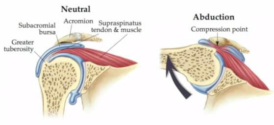impingement syndrom - avklemming i skulderen