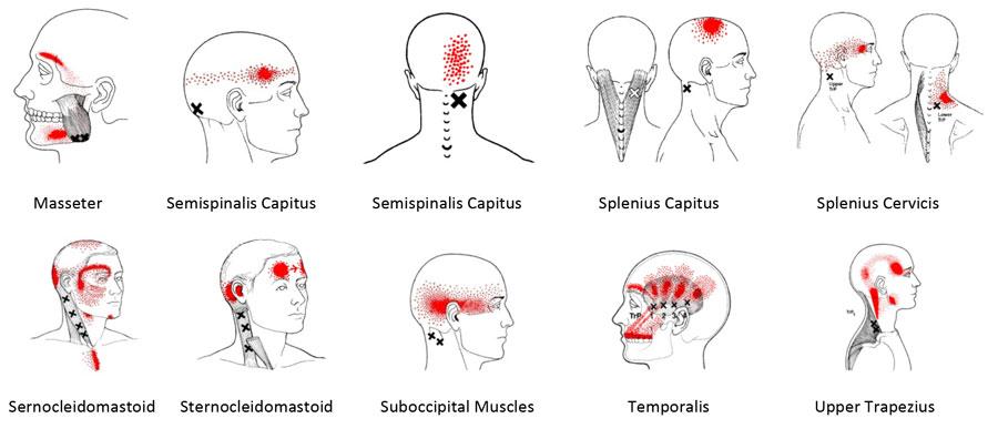 triggerpunkter og muskler som gir hodepine