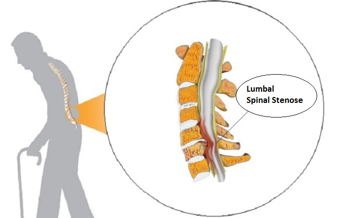 spinal stenose i korsryggen
