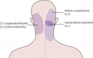 ledd - smertemønster