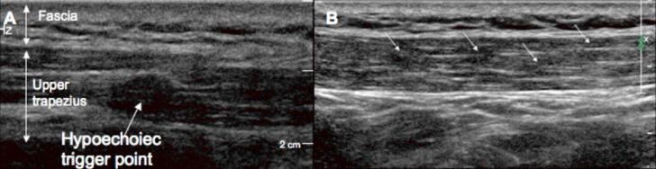 ultralyd av en muskelknute