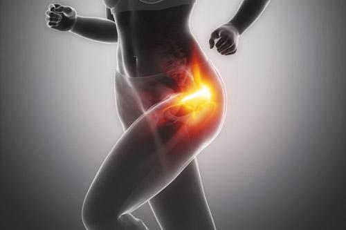 hoftesmerter