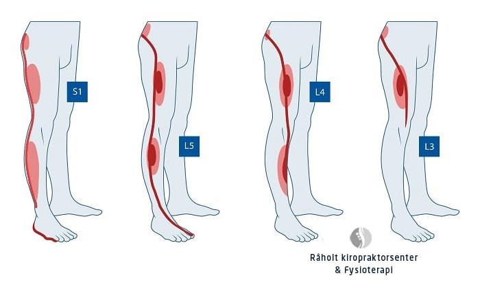 dermatomer - stråling i beina