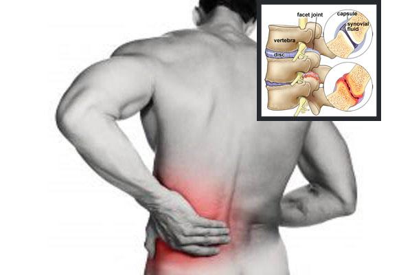 laasning i ryggen
