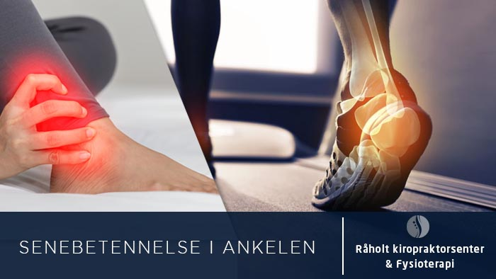 1fb8243b Senebetennelse i ankelen | Råholt Kiropraktorsenter & Fysioterapi