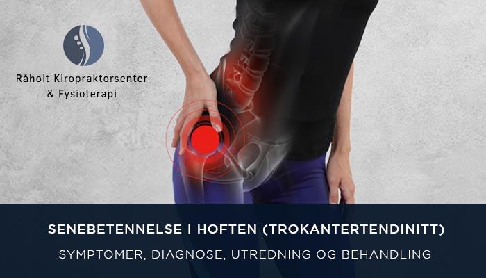 144c40425 Senebetennelse i Hoften (Trokantertendinitt) | Råholt Kiropraktorsenter