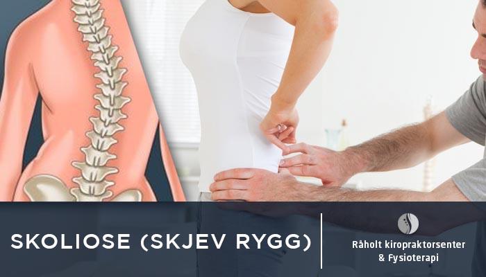 skoliose - skjev rygg