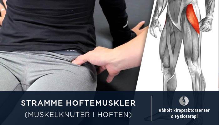 ffaba567 Stramme hoftemuskler (muskelknuter i hoften) | Råholt Kiropraktorsenter
