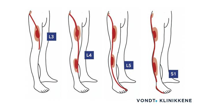 Oversiktsbilde som viser hvordan stråling i beina kan forekomme ved prolaps eller spinal stenose.